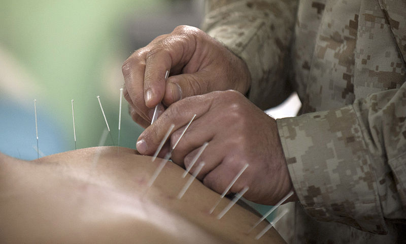800px-Flickr_-_Official_U.S._Navy_Imagery_-_Cmdr._Yevsey_Goldberg_conducts_an_acupuncture_procedure.